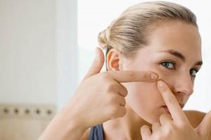 como combatir el acne
