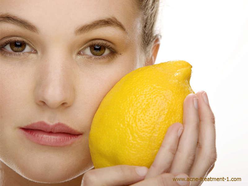 remedios para el acne