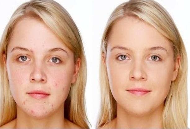 acne quistico