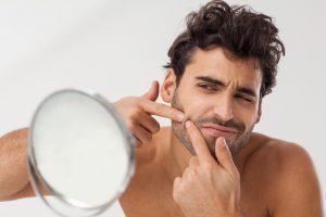 tratamientos para el acne